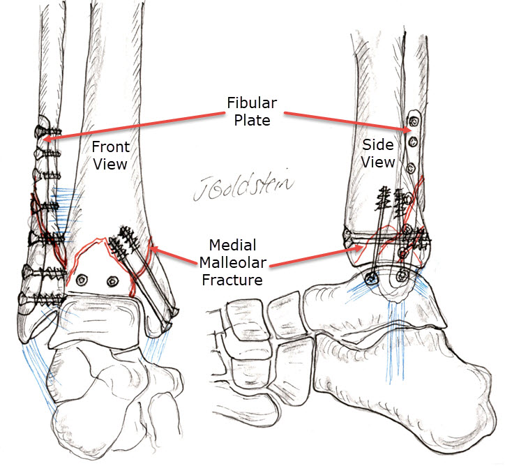 Ankle Fracture Fixation