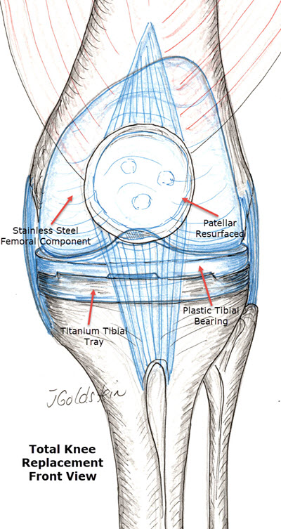 Total Knee Front View