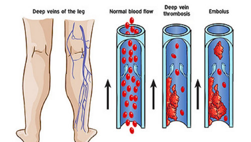 deep vein thrombosis image