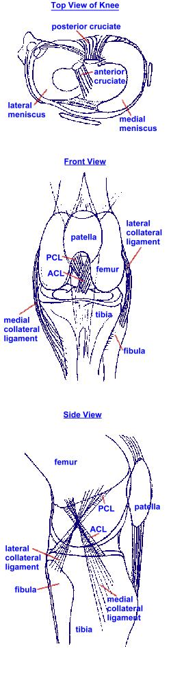 ACL Tear of the Knee